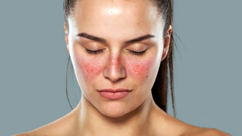 What are the Signs and Symptoms of Lupus - Treating Lupus with Cannabis