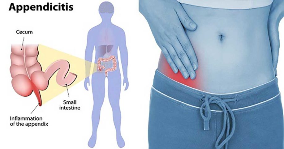 Symptoms Appendicitis Related Keywords - Symptoms ...