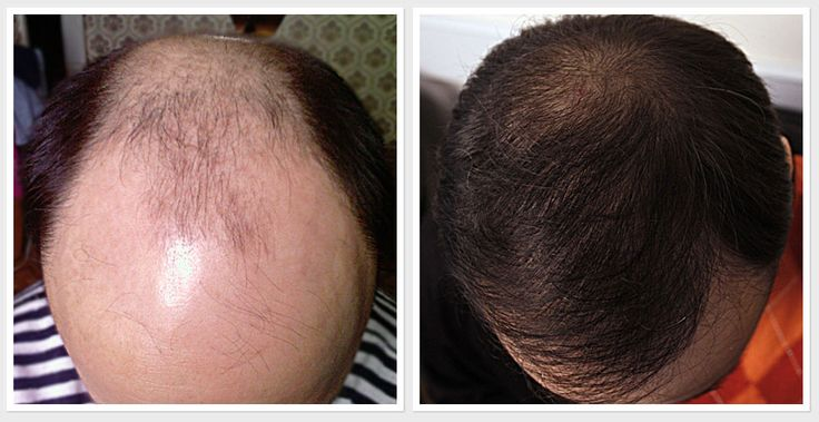 Minoxidil and propecia results